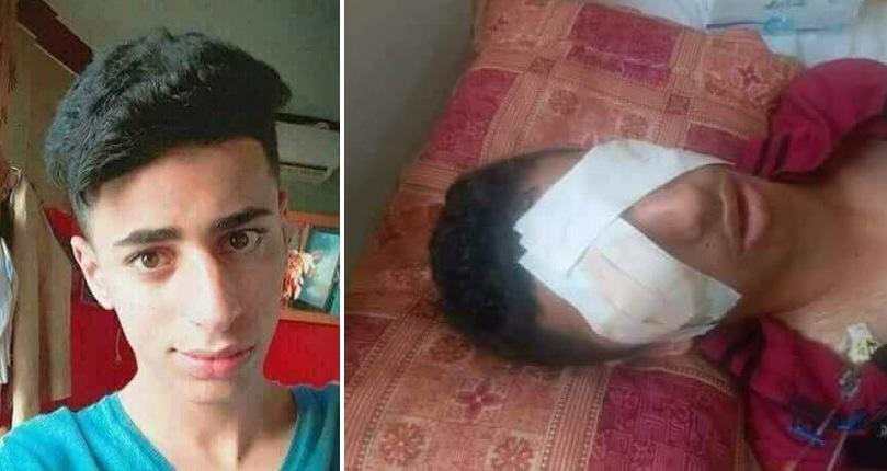 Ahmed Ashour unverletzt und bandagiert