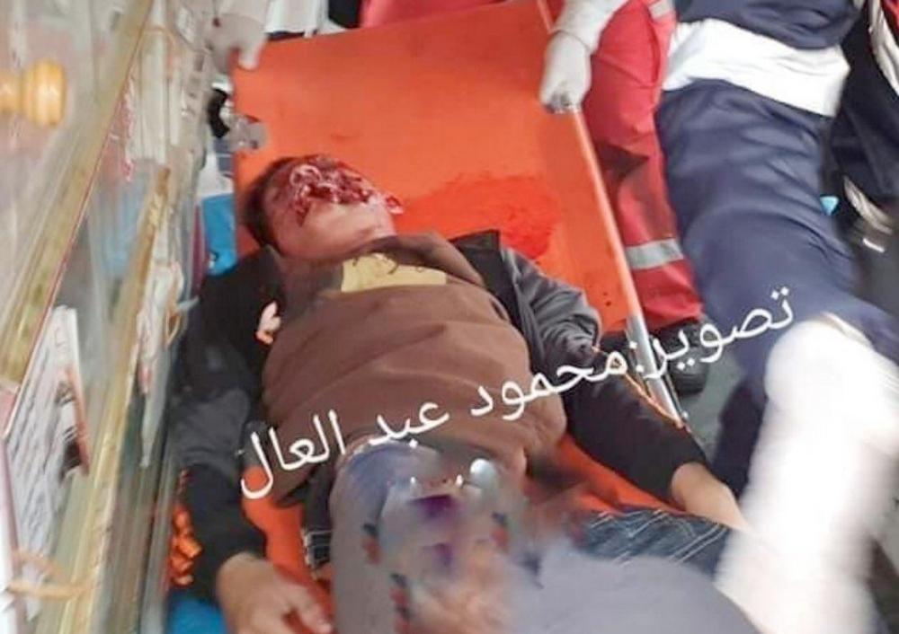 Gaza Adham Emara (17) direkt ins Gesicht geschossen